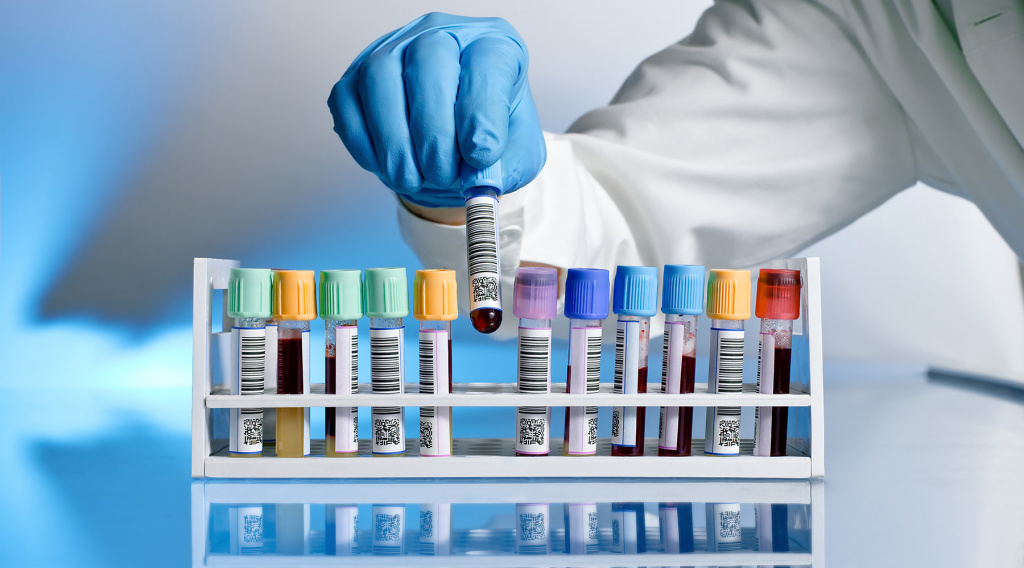 Лабораторная диагностика на Позняках в Киеве