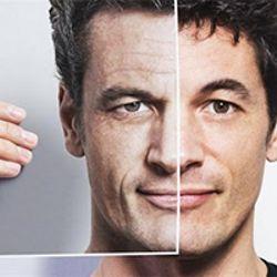 Мезотерапия для мужчины